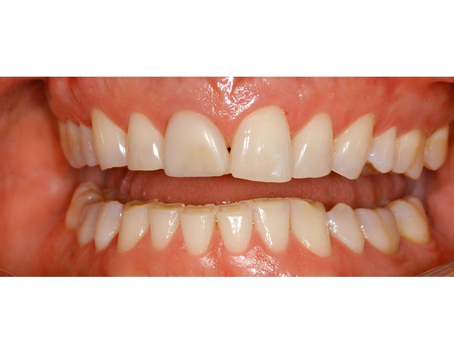 Zähneknirschen (Bruxismus)