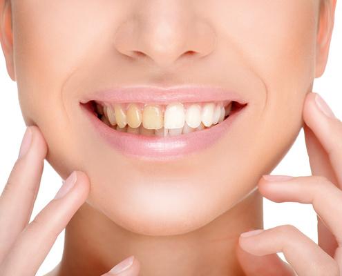 Bleaching / Zähne bleichen beim Zahnarzt