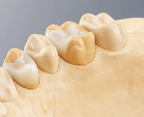 Fillings made of Plastic and Ceramics